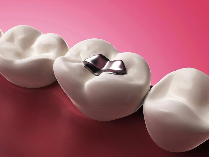 mercury-tooth-filling-teeth